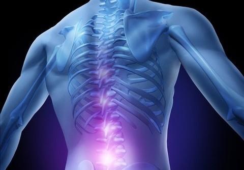 symptome bandscheibenvorfall e1351765013864