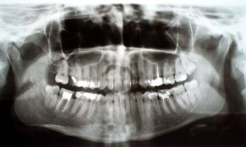 Röntgenbild Zähne
