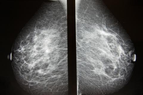 Untersuchung der Brust einer Frau