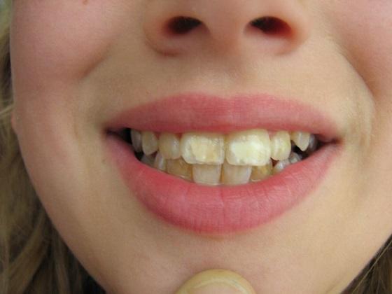 Dentalfluorose