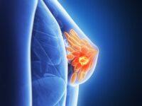 symptome brustkrebs